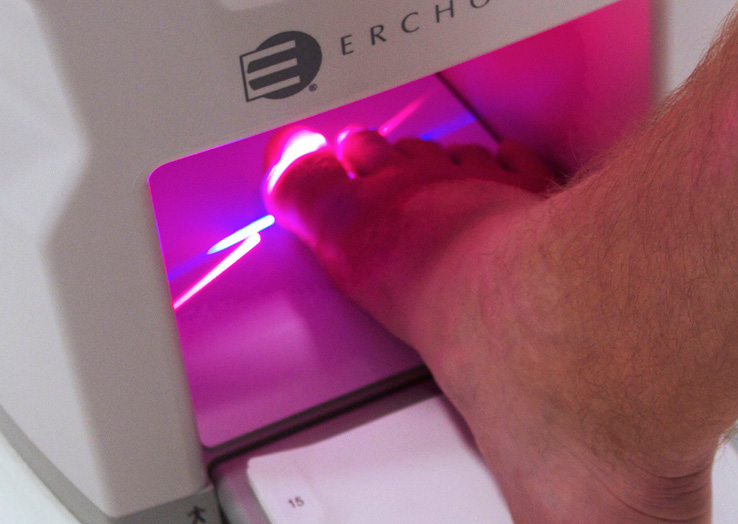 Lunula-foot-cold-laser