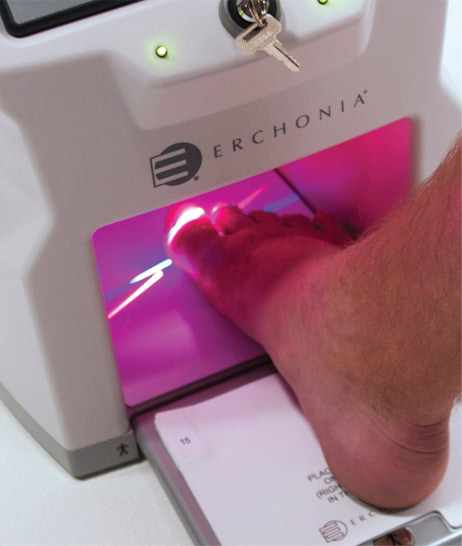 Lunula Laser treatment for fungal nail infections