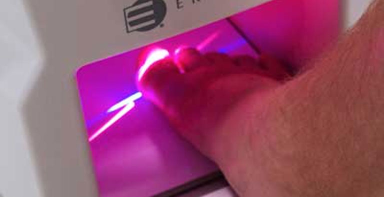 Treat toe nail fungus with Cold Laser